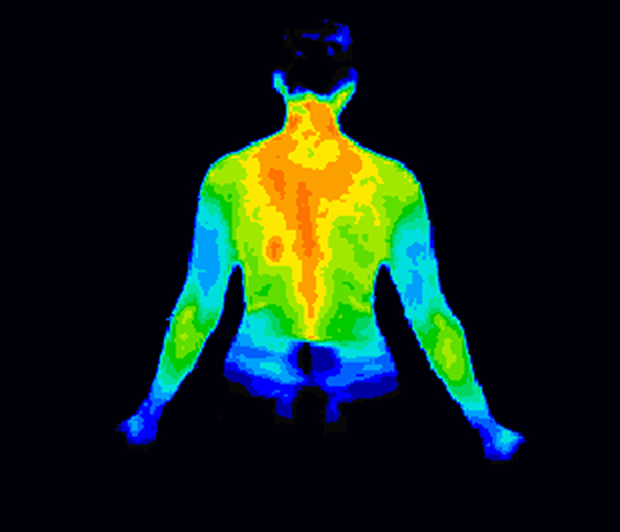 Infrared imaging is a non painful and affordable technique to visualize parts where the patient suffer from muskuloskeletal disorders.